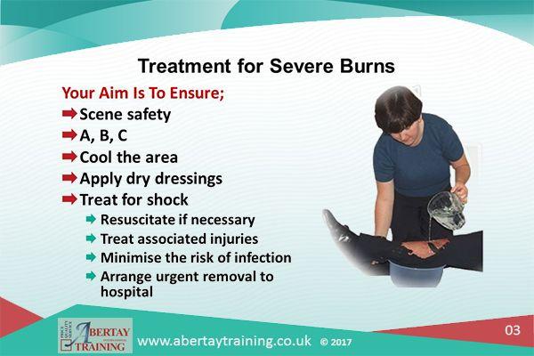 First Aid Burns